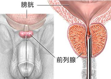 前列腺治疗方法